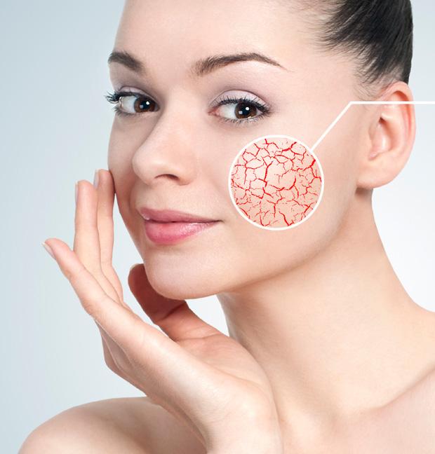 jakie kosmetyki dla skóry naczyniowej